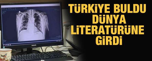 Türkiye buldu dünya literatürüne girdi! Kovid-19 tedavisinde çığır açan yöntem